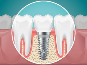 Dental Implants are the best way to restore missing teeth